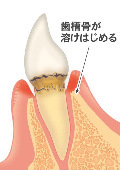 歯周病(進行期)
